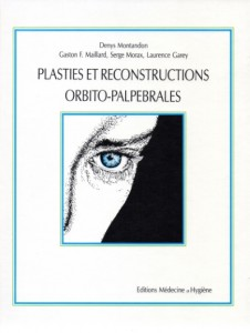 plasties reconstructives